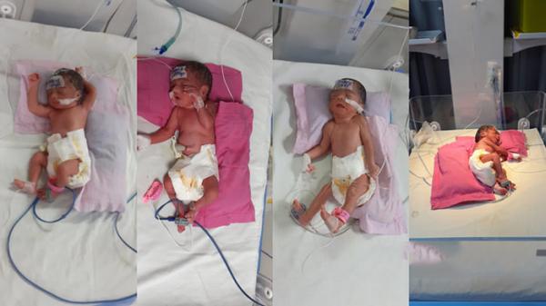 নোয়াখালীতে একসঙ্গে চার নবজাতক জন্ম দিলেন মা